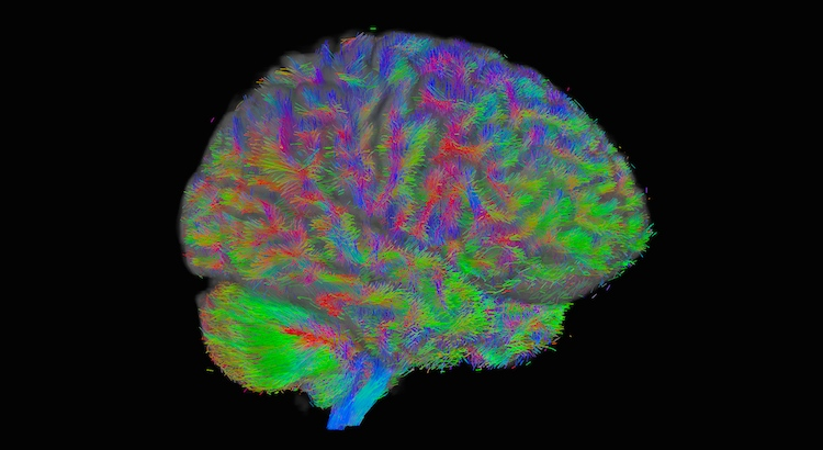 Global Tractography